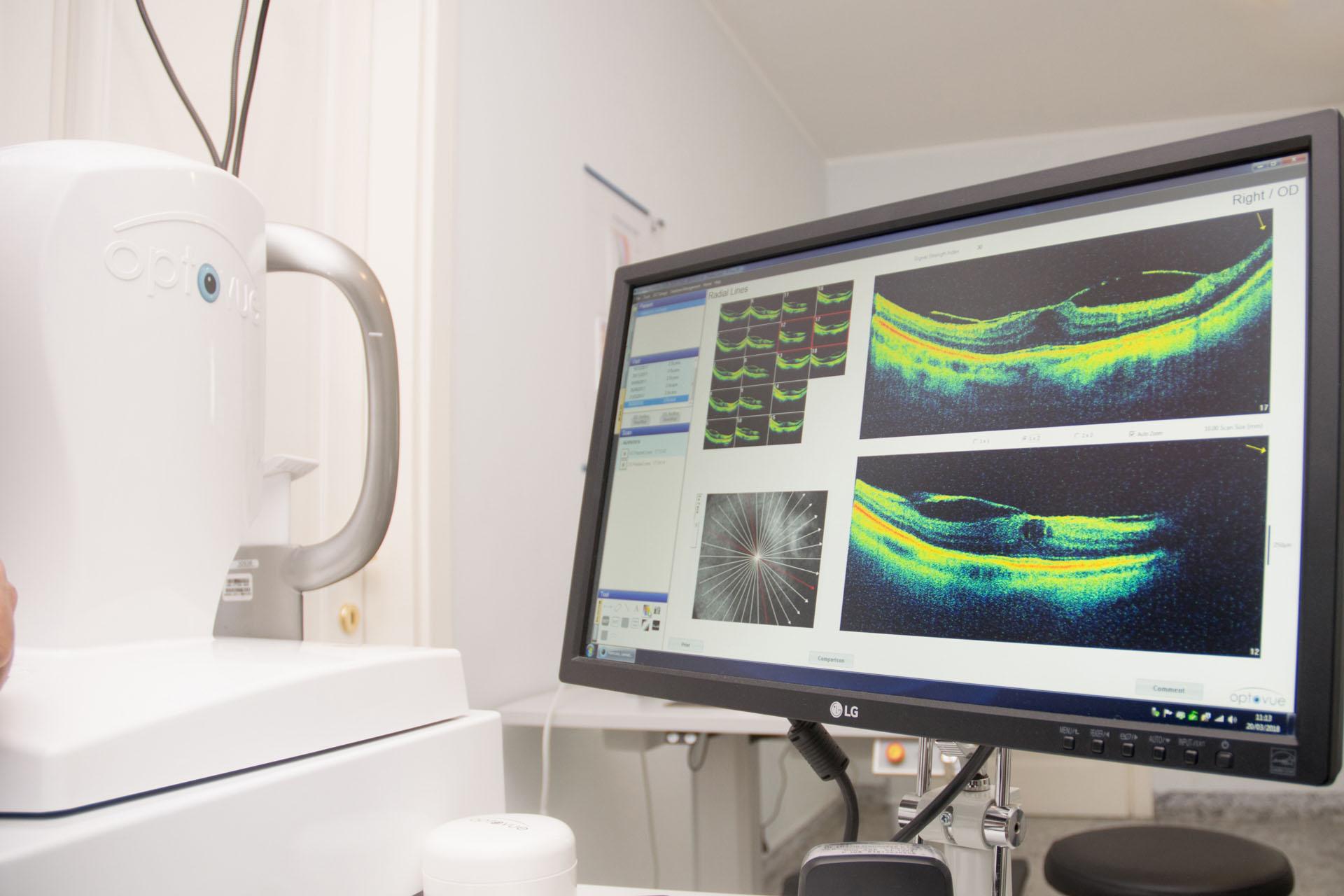 71547bd16 L'esame all'occhio, viene eseguito direttamente presso il nostro studio  oculistico a Gela che dispone di OCT e Angio-OCT di ultima generazione.